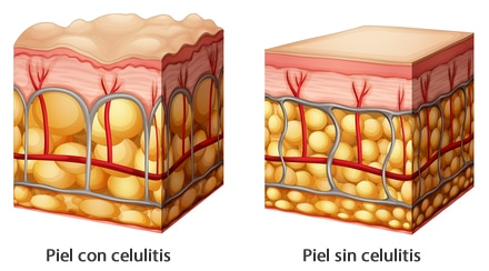 tipos de piel herbalife celulitis